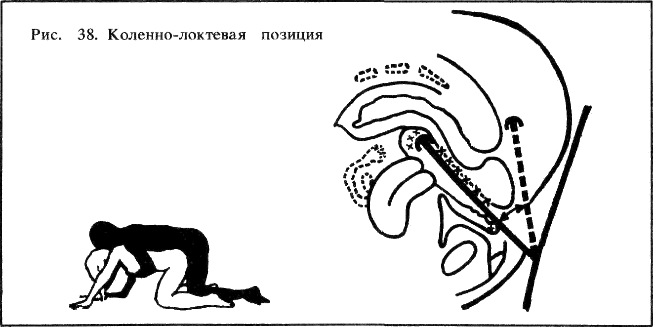 kolenno-loktevoe-polozhenie-pri-sekse